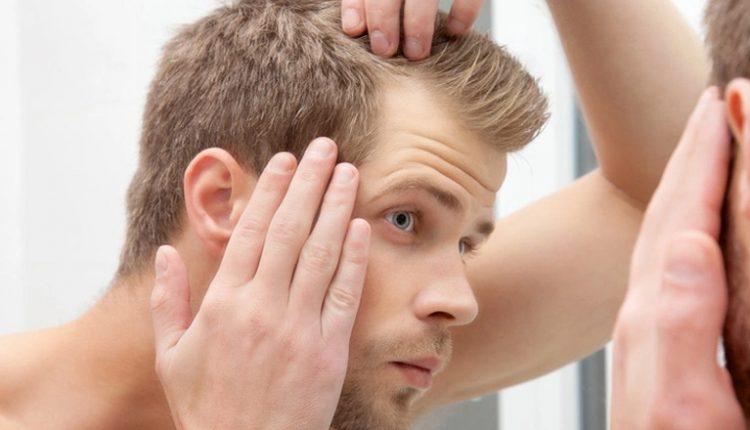 Saç Dökülmesi Nasıl Başlar?