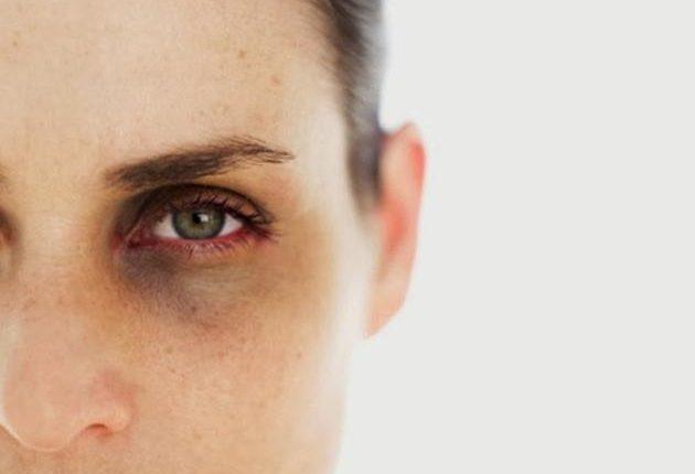 göz altı,doğal,gül suyu,zerdeçal